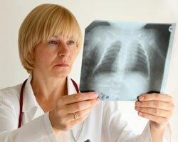 Диаскинтест-современный метод диагностики туберкулеза
